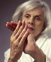 Raynaud's Disease, hands,feet, blood supply