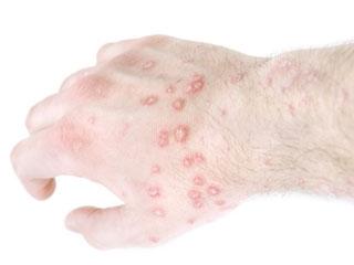 Psoriasis Rash Pictures Symptoms