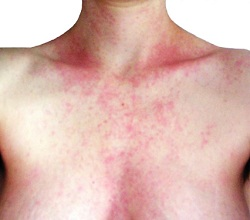 hives-chest-woman