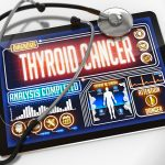 Thyroid Cancer Symptoms