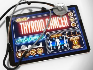 Thyroid Cancer Symptoms, thyroid gland cancer
