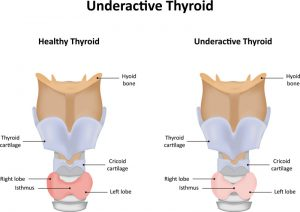 symptoms of hypothyroidism in men